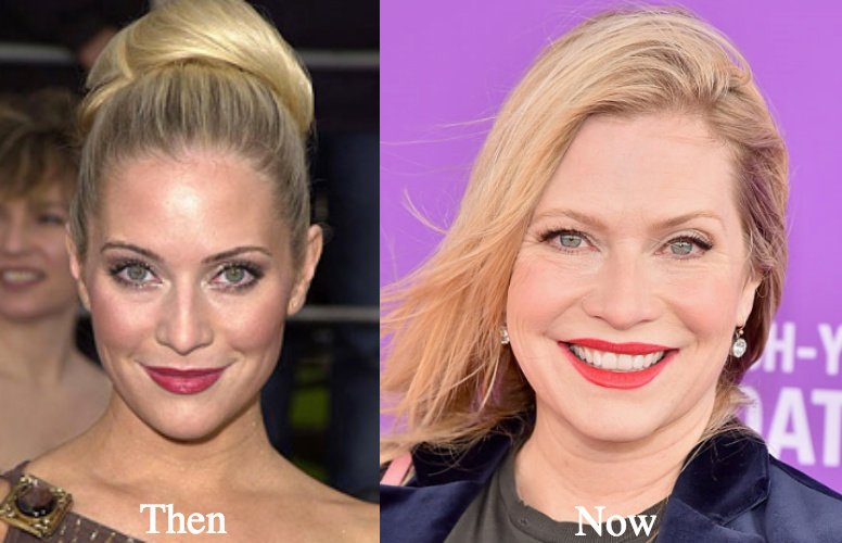 Emily Procter botox before and after photos