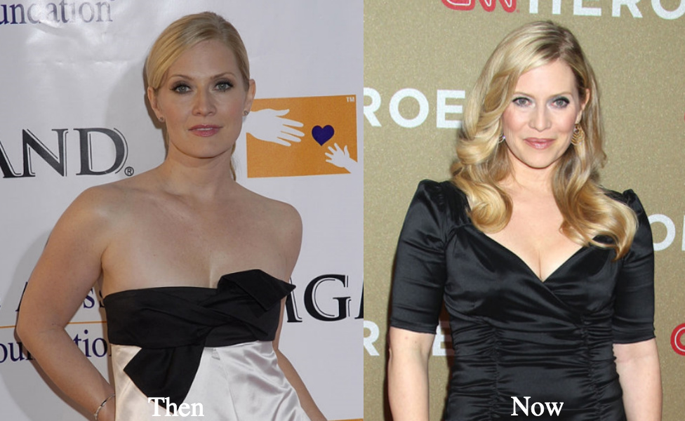 Are emily procter plastic surgery before after apologise, but