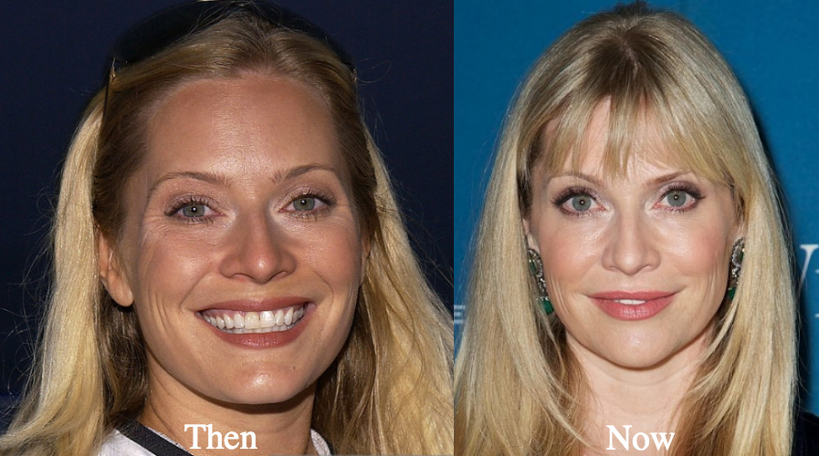 Emily Procter lip fillers before and after