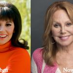 Marlo Thomas Plastic Surgery Before and After Photos