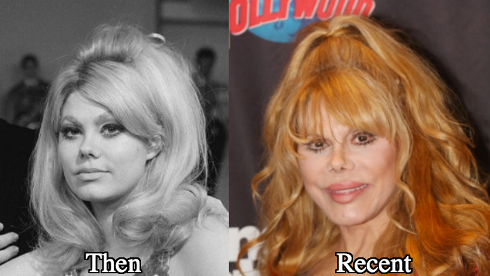 Charo Facelift before and after photos