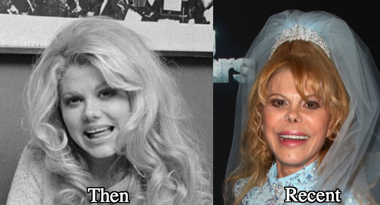 Charo Nose job before and after photos
