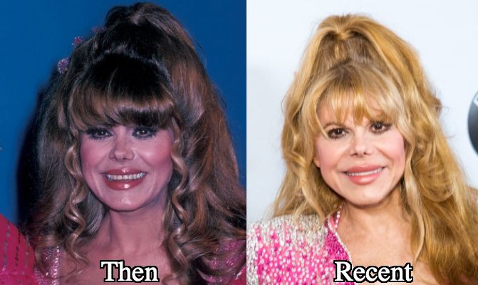 Charo lip implants fillers before and after photos