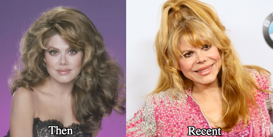 charo plastic surgery before and after photos