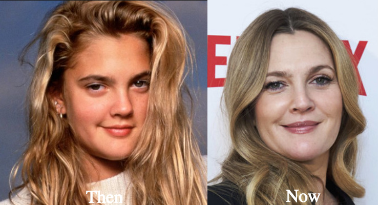 Drew Barrymore Plastic Surgery Before And After Photos