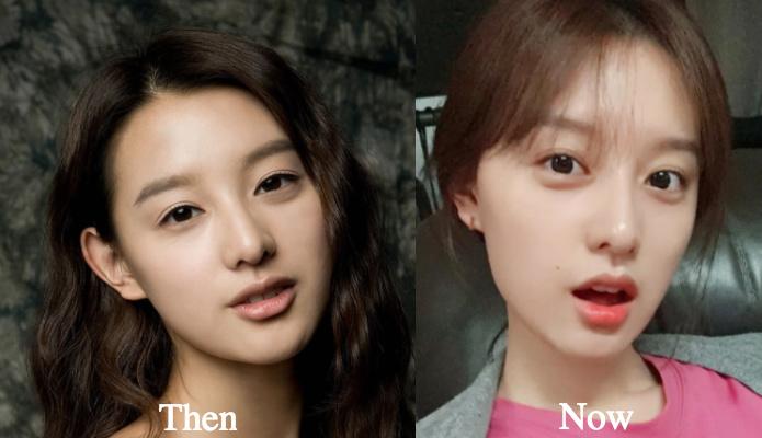 Kim Ji Won Plastic Surgery Before and After Photos ...