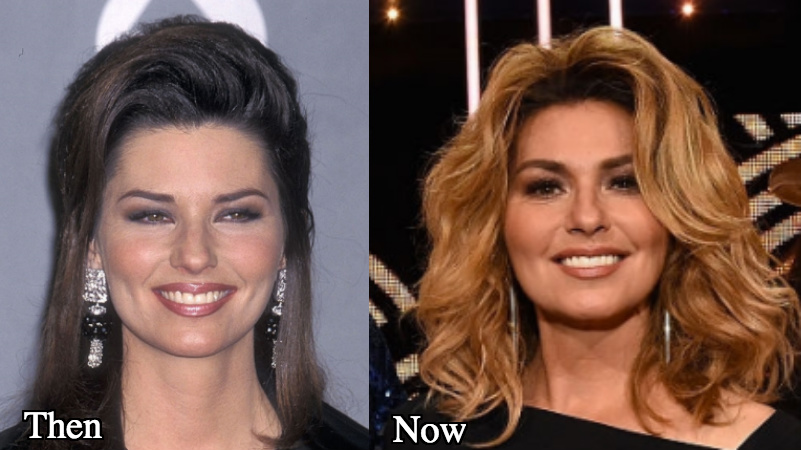 Did shania twain have plastic surgery