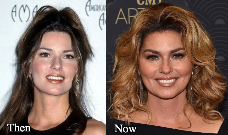 Shania Twain nose job rumors before and after