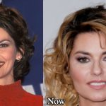 Shania Twain Plastic Surgery Before and After Photos