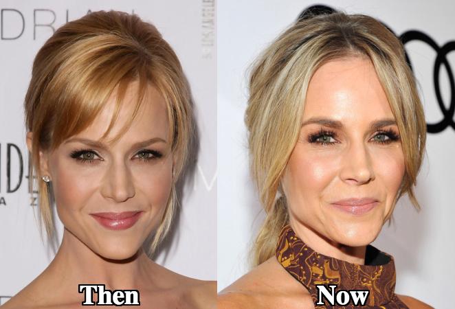 Julie Benz Botox facial plastic surgery