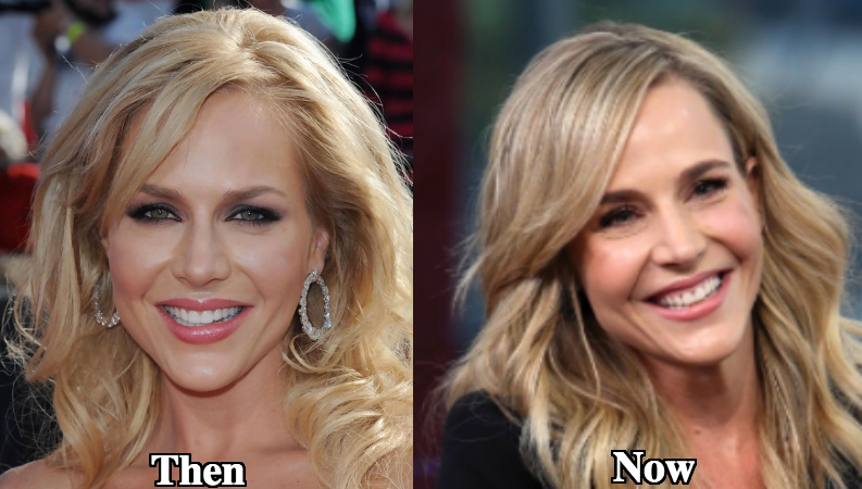 Julie Benz botox use before and after