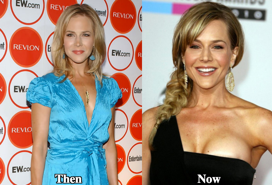 Julie Benz breast augmentation before and after photos