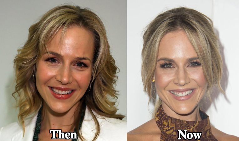 Julie Benz facial fillers before and after