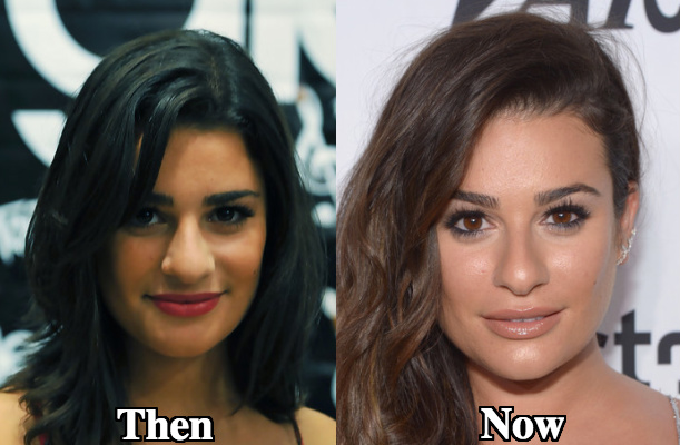 Lea Michele nose alteration before and after