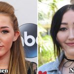 Noah Cyrus Plastic Surgery Before and After Photos