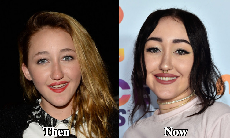 Noah Cyrus eyebrows lift before and after photos