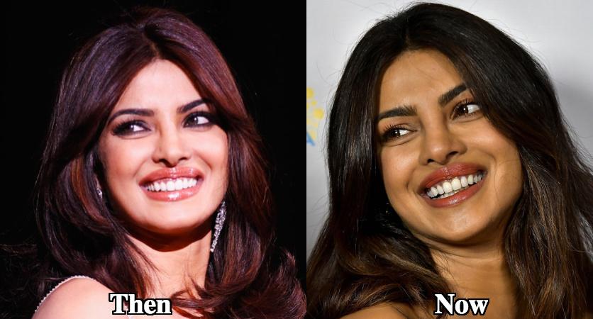 Priyanka Chopra lip fillers before and after photos