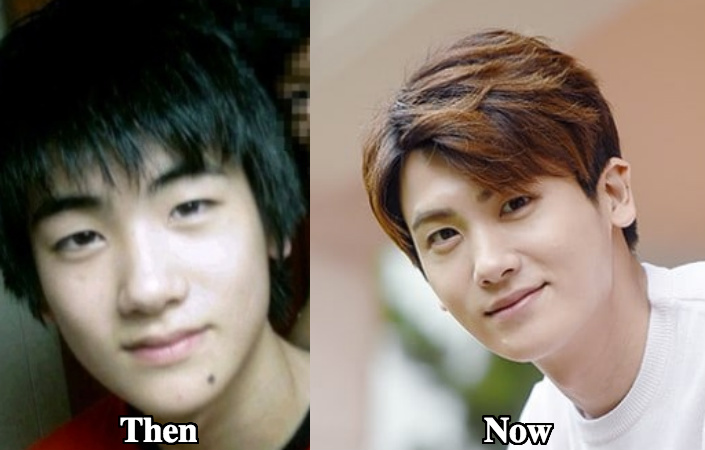 Park Hyung Sik jawline chin surgery