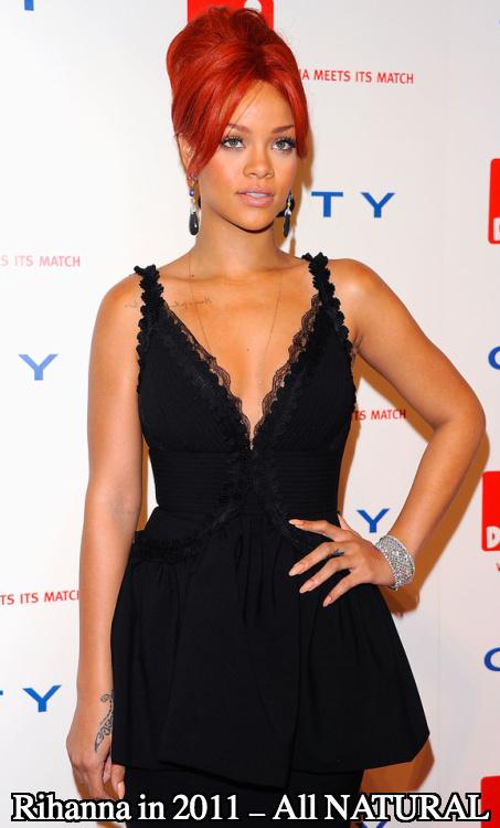Rihanna boob job 2011