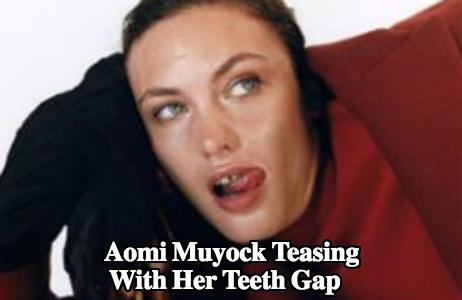 Aomi muyock teeth